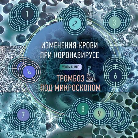 Тромбоз при коронавирусе. Как меняется кровь заболевшего коронавирусом
