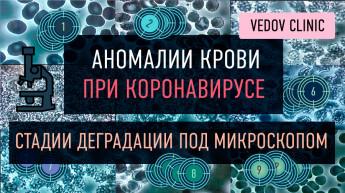 Диагностика по капле крови у доктора Ведова. Результаты у коронавирусных больных