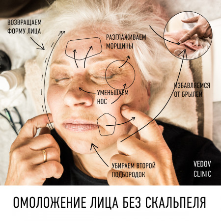 Омоложение с помощью пластики доктора Ведова