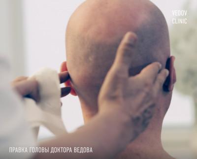 краниотерапия в клинике доктора Ведова