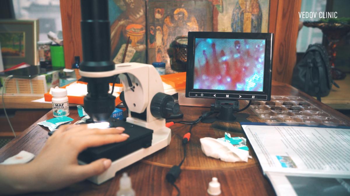 Диагностика на капилляроскопе
