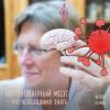 «Коронованный» мозг — что необходимо знать