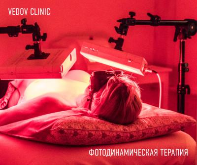 Фотодинамическая терапия (лечение фотодинамикой)
