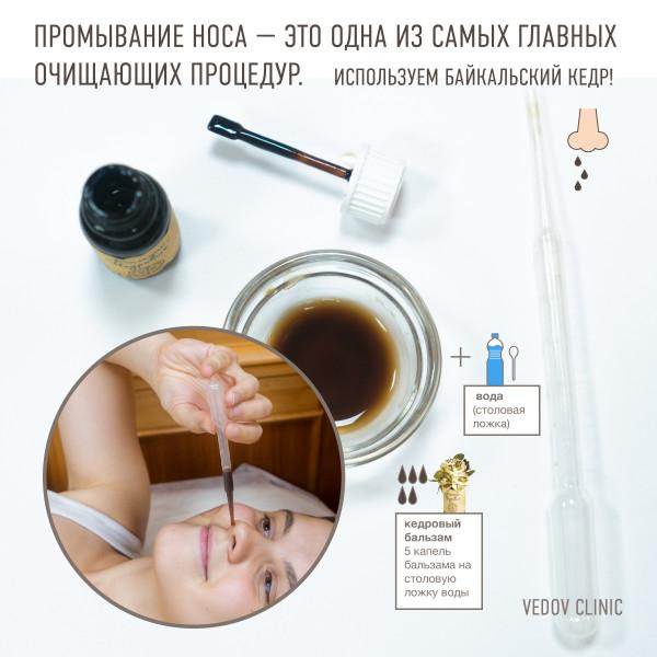 Промывание носа.